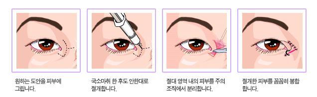 手术介绍:部分切割法   使用这种手术方法可以使浸埋法的缺点和切割法的优点相互补充。它具有浸埋法一样肿胀少恢复期短的特点,同时又可以通过小切口一次去除眼皮下的脂肪。   手术后,可以无痕形成自然的双眼皮效果,一周左右消除肿胀,同时也可将厚脂肪去除,是深受忙碌的职场人和学生喜爱的手术方法。   手术介绍:无创前眼角扩张手术(针对蒙古皱纹)   60%的韩国人前眼角有皱纹,所以两眼距离看上去很远而且眼睛也看上去很小。如果蒙古皱纹较深的话还会给别人一种莫名的压抑感。   如果蒙古皱纹很深又不去除的话,双眼皮