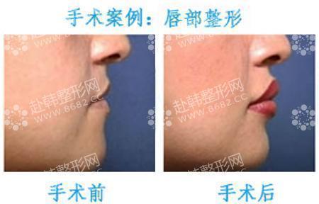 唇部皮肤结构图片