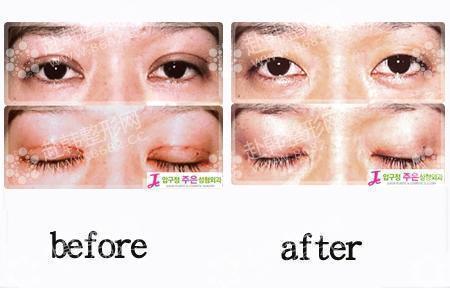 双眼皮修复前后对比照