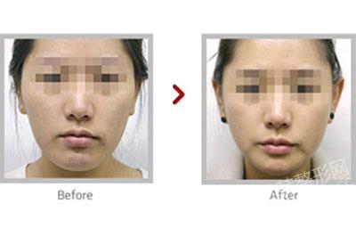面部轮廓整形前后对比