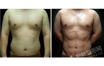 腹肌塑造前后对比照片