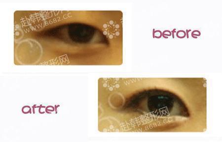 眼部 > 埋线法双眼皮    埋线法双眼皮不切开皮肤,只用一根缝合线顺着