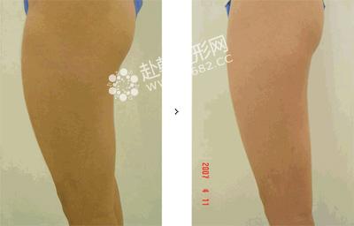 拥有溶脂针身材注射美腿就简单,超炫瘦腿排能油吗v身材图片
