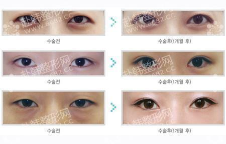 双眼皮的手术过程