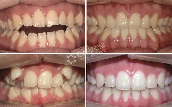 牙齿矫正   牙齿矫正的方法   活动矫治器   对于处于乳牙和替牙期的爱美者,这是最佳的牙齿矫正的方法,比较简单。也可用来配合固定矫治器进行矫治,爱美者可以自己摘戴,比较方便。   无托槽隐形矫治器   很多爱美者因为工作等原因,对形象要求较高,所以最适合采用无托槽隐形矫治器,爱美者可以自行摘戴。不过,这种方式只适合轻度的牙列拥挤和个别牙的扭转。   正颌外科牙齿矫正   有的爱美者有严重的牙颌面畸形,如上颌后缩,下颌前突等等,一般的正畸方法移动牙齿的距离是有限的,并不能保证效果。而正颌外科可以较大范