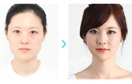 面部轮廓整形前后对比-整容前后对比图片