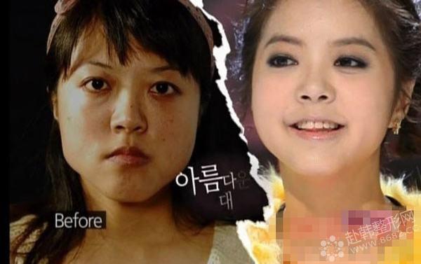 韩国整容节目《let美人2》记录丑女变美全过程爆红