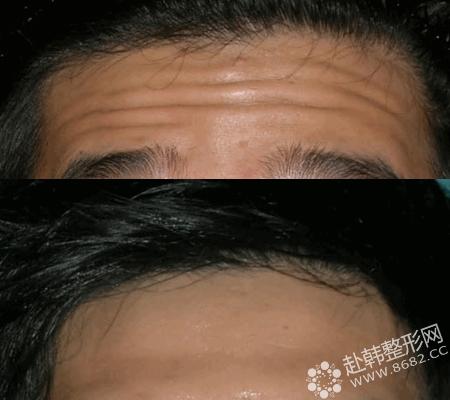额头皱纹整形对比照
