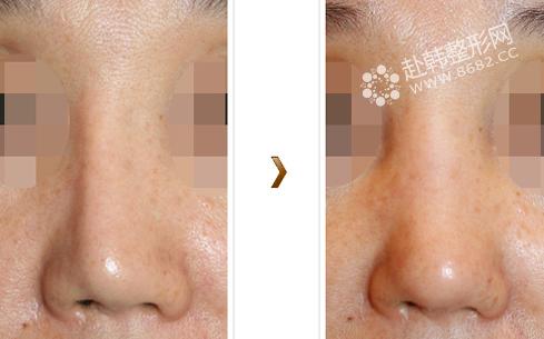 隆鼻失败修复对比照