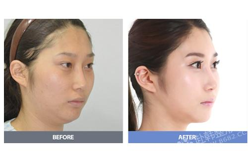 面部吸脂术有哪些优势