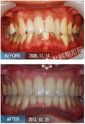 由先天因素或后天因素导致的牙齿,颌骨,颅面的畸形,错颌畸形与龋齿