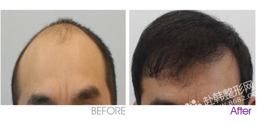 头发移植对比照