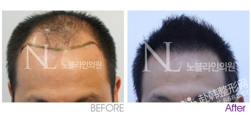 毛发移植手术价格到底贵不贵?