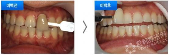 牙齿结构明细图