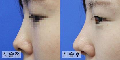 韩国鼻子整形多少钱