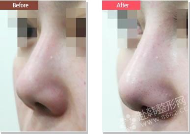 韩国整形鼻部整形朝天鼻矫正正文朝天鼻就是鼻孔朝天外露的一
