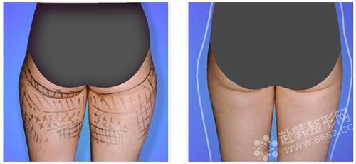 大腿吸脂减肥多久能消肿 大腿吸脂对比照
