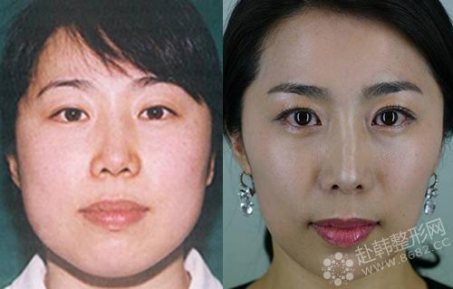 对于下颌角肥大、下颌骨宽大的爱美者,需要选择下颌角整形手术 下颌角磨骨整形前后对比照