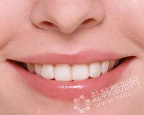 超声波洗牙 拥有健康洁白好牙