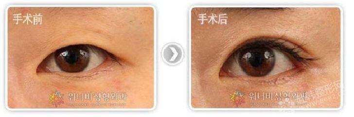 柳锡泰院长:欧式双眼皮和韩式双眼皮的比较