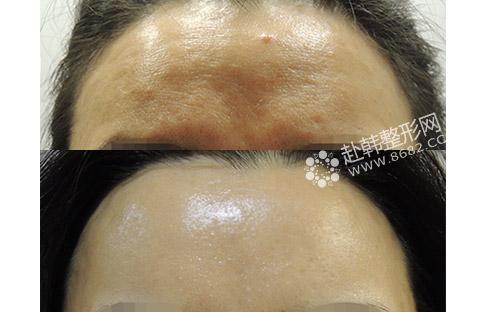 额头皮肤层次结构图