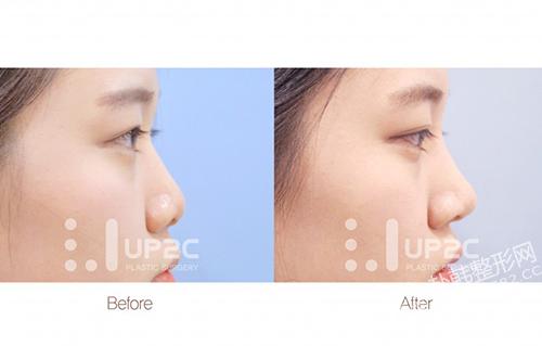 软骨隆鼻是什么,效果怎么样 隆鼻前后对比照
