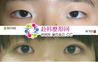 韩式整形 切开法双眼皮手术
