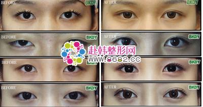 双眼皮效果经常使用一些形成双眼皮的方法