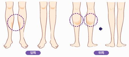 小腿骨骼结构图