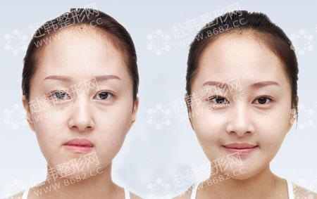 颜面不对称手术对比照片-8682赴韩整形网图片