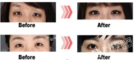 埋线双眼皮手术前后-8682赴韩整形网