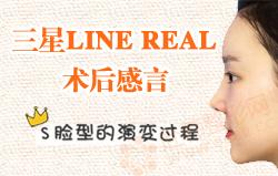 三星LINE Real术后感言(盈英)