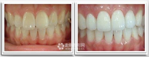 牙齿美白前后对比照片
