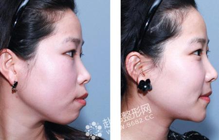 突嘴矫正+下颌缩短前后对比照