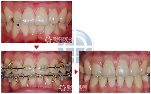 牙齿矫正术后的常见问题