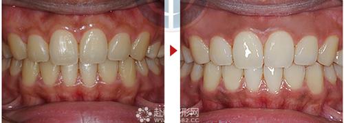 常见的牙齿美白方法 让你自信笑出来
