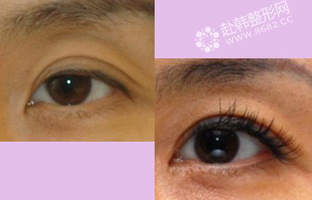 双眼皮疤痕修复的方法 双眼皮修复前后对比照