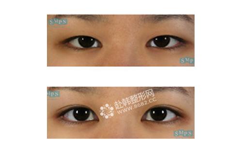 韩式双眼皮手术前后对比照 韩式双眼皮术后恢复及护理