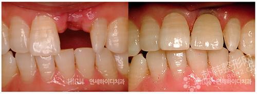 种植牙前后对比照 种植牙护理宝典