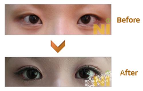 内双变双眼皮对比照