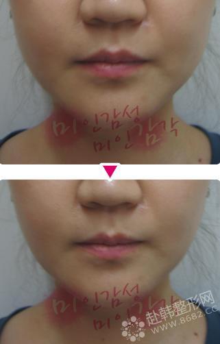 怎么使脸变瘦_注射瘦脸针 让你告别咬肌肥大,注射瘦脸-8682赴韩整形网