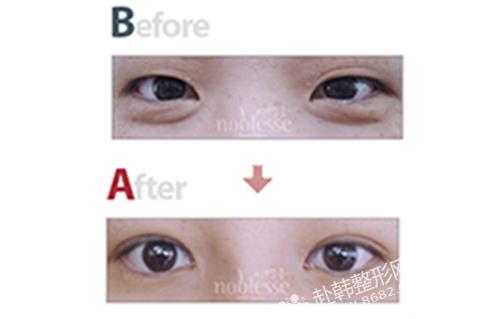 韩式三点双眼皮对比照