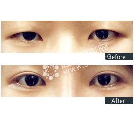 韩式切开双眼皮效果怎么样