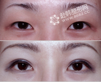 部分切开双眼皮的优点 部分切开双眼皮前后对比照