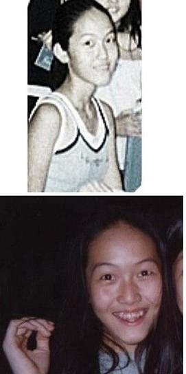 Jessica牙齿不齐整容前旧照好惊悚