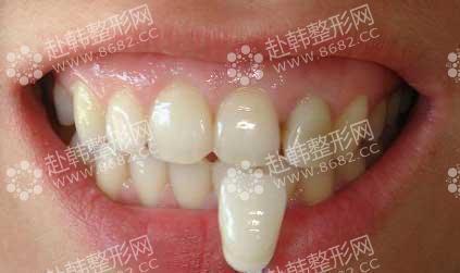 影响牙齿颜色几个因素